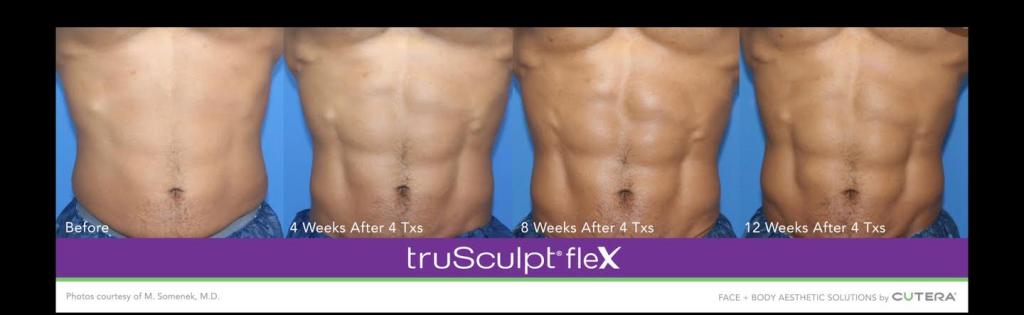 Before and after Sculpt Flex