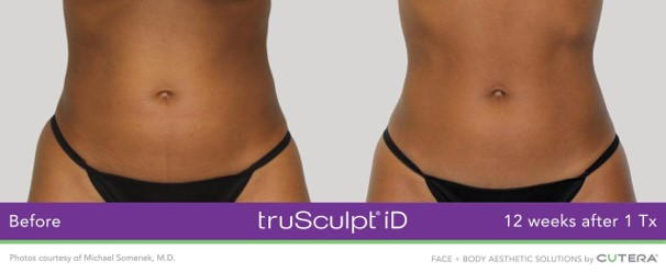 Before and After Sculpt Female